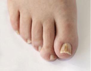wat te doen tegen kloven in voeten